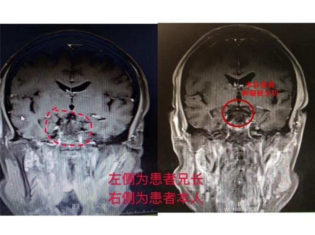 """兄弟长相酷似,先后患上""""双胞胎""""脑瘤,弟弟来就诊医生误以为哥哥来复查"""