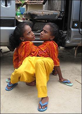 墨西哥9岁女孩产女婴 让人目瞪口呆的世界奇人