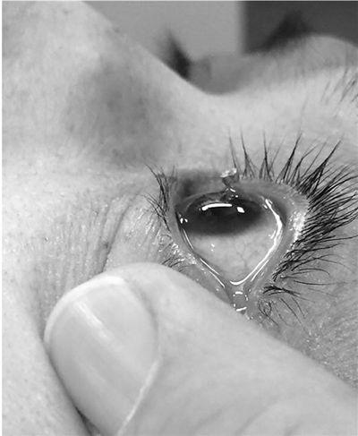 恢复了小王眼球的正常结构