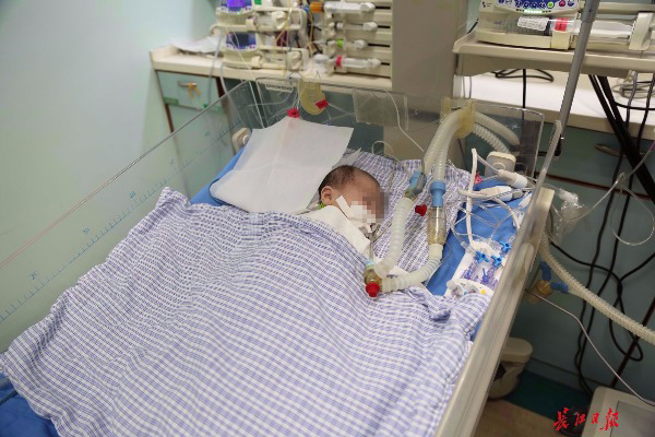 """罕见动静脉血混合 女婴出生13小时变""""紫娃娃"""" 手术创省内超低龄患儿手术纪录"""